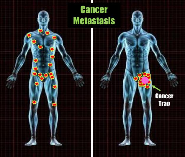 cancer trap